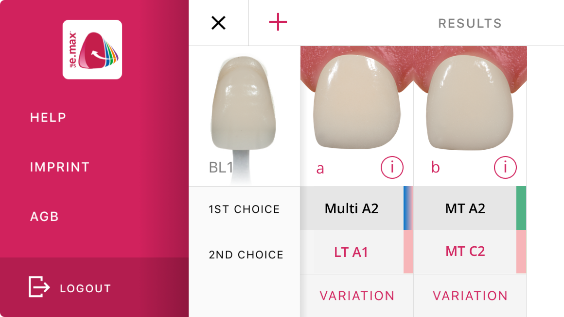 Ivoclar Vivadent Shade Navigation App User Interface